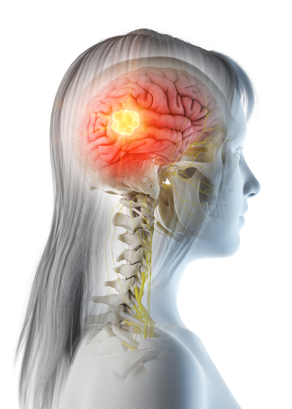 An illustration of a woman with brain tumor  highlighted