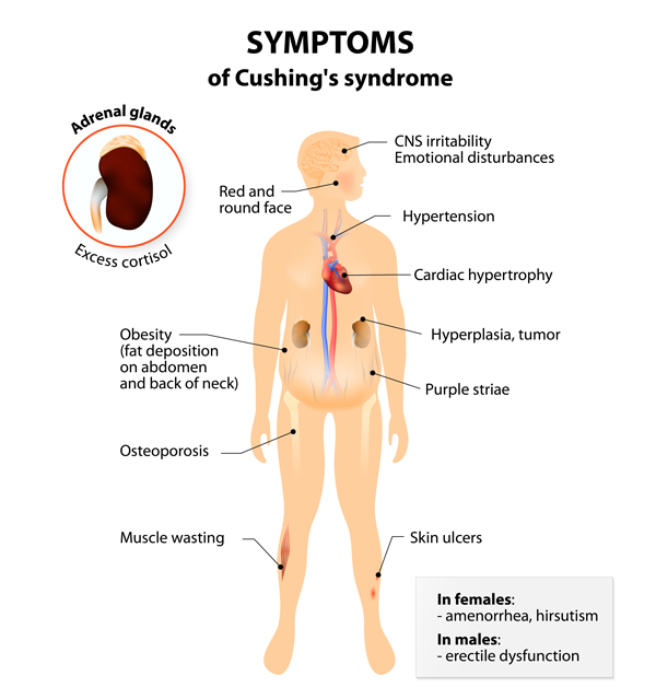 Cushing's disease symptoms