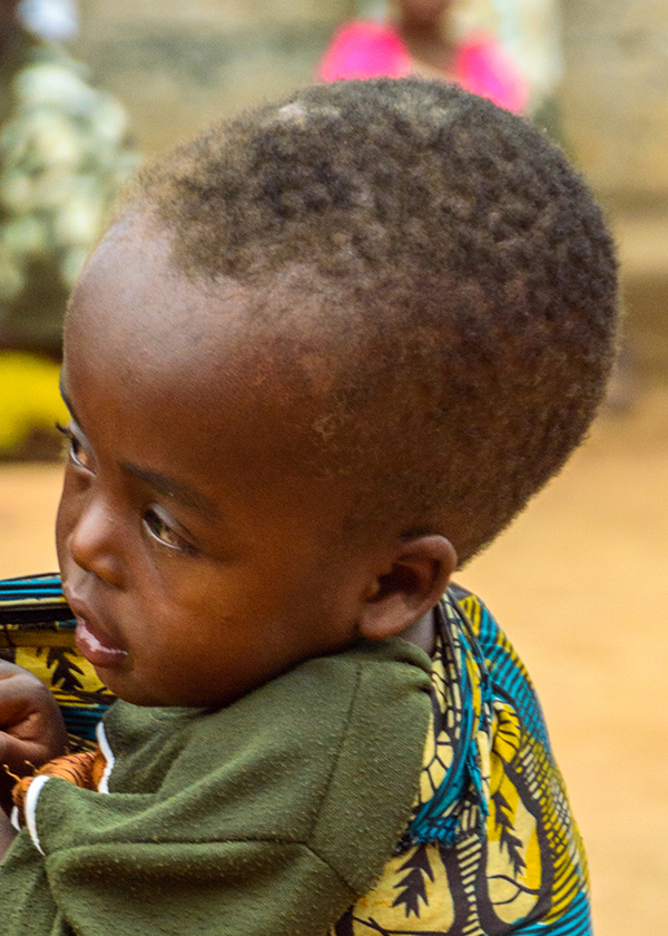 A child with big head due to hydrocephalus