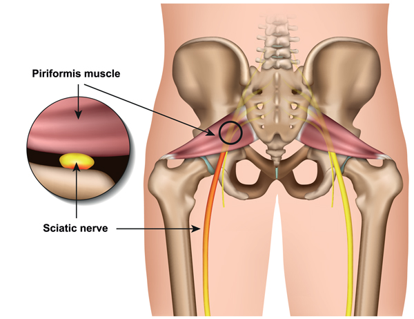 Sciatic nerve compression by piriformis muscle