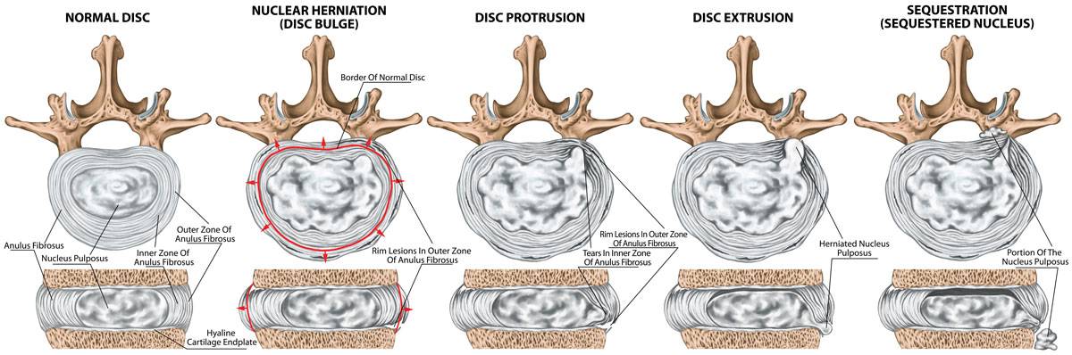 Lumbar disc degeneration sequence
